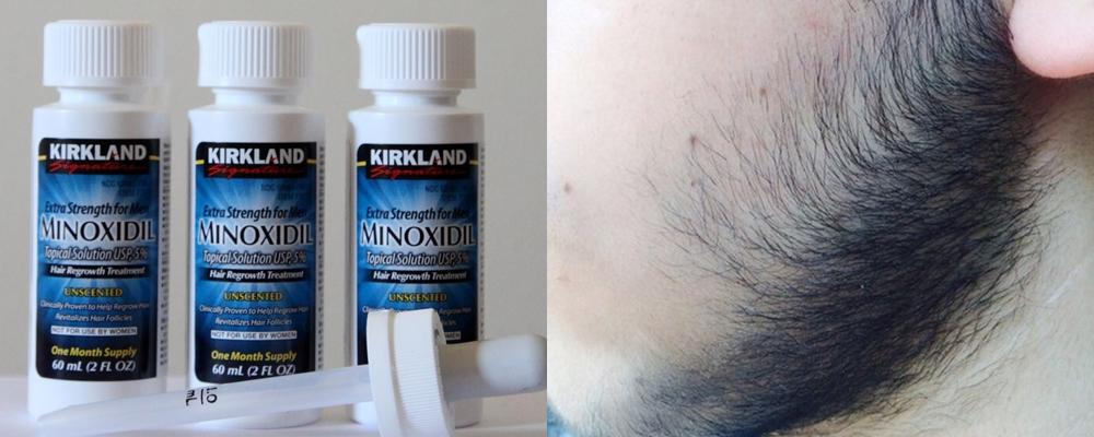 миноксидил при алопеции