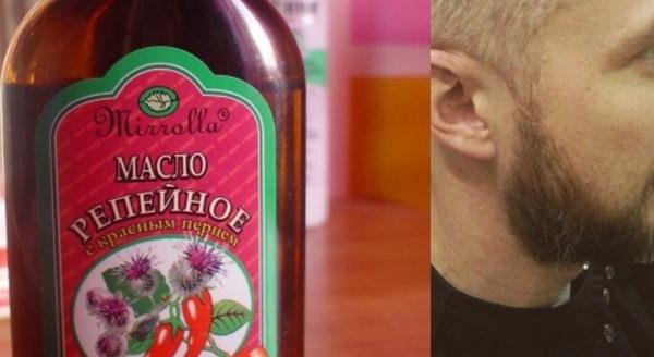 Как использовать репейное масло для роста бороды новые фото